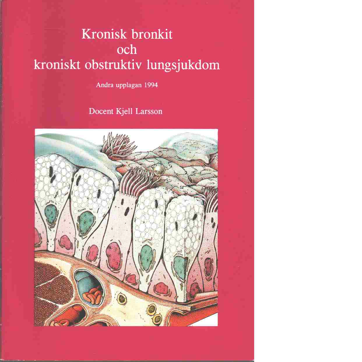 Kronisk bronkit och kroniskt obstruktiv lungsjukdom - Larsson, Kjell